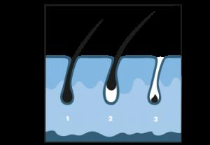IPL-Haarverwijdering-Stap5_1